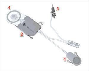 CARINA® CON SUS COMPONENTES 1. micrófono. 2. módulo electrónico. 3. percutor. 4. bobina.