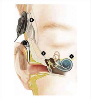 IMPLANTE COCLEAR 1. Los micrófonos del procesador de sonido captan los sonidos y los convierten en señales digitales. 2. La información digital se transmite al receptor interno alojado en la escama del hueso temporal. 3. El implante envía señales eléctricas a los electrodos situados en la cóclea. 4. Las neuronas del ganglio espiral reciben estas señales y las envían al cerebro para su procesamiento.