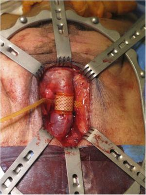 The artificial sphincter cuff placed around the bulbar urethra