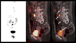 Cáncer vesical de alto grado, con lesión primaria ávida de F18-FDG, visible sólo si se ventanea imagen de PET (flecha larga). Múltiples pequeñas adenopatías metastásicas retroperitoneales (flechas cortas).