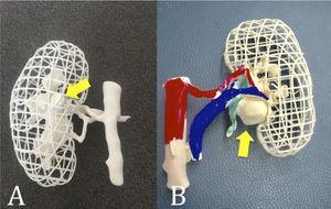 Uso de modelos impresos en 3D para planificar el abordaje laparoscópico o robótico de la nefrectomía parcial compleja A)Tumor Intrarrenal completo B) Tumor del Hilio Renal