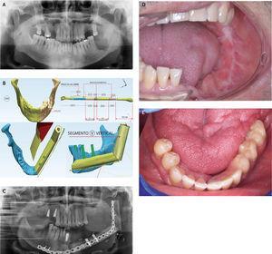 Paciente portador de un carcinoma escamoso de trígono retromolar izq. Localmente avanzado. (A). Se planificó la cirugía digitalmente incorporando variables como la ubicación de los implantes dentales, anatomía de la fíbula, disposición del pedículo vascular y paleta del colgajo de peroné (fascio-grasa) para permitir un espacio protético funcional adecuado. (B). Se realizó una mandibulectomia compuesta (Operación COMANDO) recibiendo radioterapia+quimioterapia adyuvante. (C). En el mismo acto quirúrgico se resecó el tumor, se reconstruyó con un colgajo libre y se instalaron los implantes dentales. Seis meses después se cargaron los implantes (D, E).