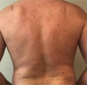 Paciente con síndrome de nevo displásico y dos melanomas primarios extirpados.