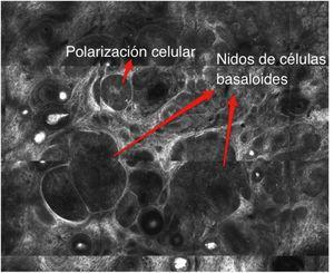 Foto de mosaico de MCR evidenciando la presencia de hallazgos altamente sugerentes de carcinoma basocelular