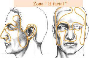 Zona H piel facial
