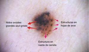 Foto dermatoscópica