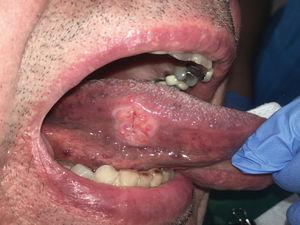 Carcinoma de cavidad oral en borde de lengua