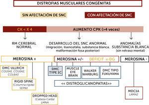 """Algoritmo diagnóstico global de las distrofias musculares congénitas (DMC) principales La orientación diagnóstica de las DMC se hace en base a la afectación o no del sistema nervioso central (SNC), el nivel de enzimas musculares (normal o no muy elevado&#59; marcadamente elevado), datos neuroradiológicos (RM cerebral normal, con anomalías estructurales o de la substancia blanca aisladas), inmunohistoquímicos (expresión de merosina y alfa distroglicano) y marcadores fenotípicos (hiperlaxitud distal, rigidez espinal, pérdida de sostén cefálico, hipertrofia muscular, sindrome cerebro-ocular (""""Muscle-eye-brain"""" (MEB)). Sindrome de Walker-Warburg, DMC de tipo Fukuyama). Los pacientes inteligentes, con RM cerebral normal suelen tener nivel de CK normal o poco aumentadas, expresión de merosina normal y pueden tener tres tipos de DMC por mutación de los genes SEPN1, COL6 o LMNA fundamentalmente. Las formas con retraso mental o con aumento marcado de CKs pueden tener formas con déficit primario o secundario en merosina. Los déficits primarios son debidos a mutaciones del gen LAMA2 y se caracterizan por un respeto de las funciones cognitivas pero anomalías difusas de la substancia blanca cerebral. Los déficits de merosina secundarios tienen un déficit de glicosilación de alfa distroglicano (distroglicanopatías). El espectro de fenotipos de las distroglicanopatías es muy extenso, desde pacientes sin retraso mental, hasta otros con retraso y malformaciones cerebro-oculares o de fosa posterior, o anomalías de substancia blanca supratentorial de extensión variable)."""
