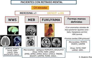 Algoritmo de las DMCs con retraso mental (distroglicanopatías) Este grupo de DMC presenta incremento importante de CKs de forma constante (salvo si estado muy avanzado de la enfermedad con atrofia muscular severa) y pueden presentar varios tipos de síndromes: Walker-Warburg (WWS), con lisencefalia de tipo empedrado (cobblestone) y anomalías muy severas malformativas de cerebro fosa posterior y tronco cerebral, incompatibles con la vida o con pronóstico de supervivencia limitado. Muscle-Eye-Brain (MEB) que presenta anomalías menos severas múltiples (malformaciones en cerebro, cerebelo y tronco, anomalías de substancia blanca) con frecuencia asociadas a afectación ocular. Esta forma en Japón se debe fundamentalmente a un gen (FKTN o fukutina, y conduce a la DMC de tipo Fukuyama). Se pueden encontrar, además, casos con RM normal y con anomalías mínimas (microcefalia) o aisladas de fosa posterior, o vermis cerebeloso, que no son conocidas por términos específicos. Hay actualmente al menos 18 genes, existiendo una heterogeneidad genética de los diferentes síndromes.