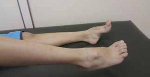 Legs and feet in a patient with CMT Note the atrophy of the distal portions of the legs and deformities in the feet (cavus feet, hammer toe).