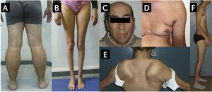 Hallazgos característicos de algunas formas comunes de distrofia muscular del adulto A. Distrofinopatía, distrofia de Becker (BMD). Vista posterior de las extremidades inferiores de un paciente con BMD. Se observa una marcada pseudohipertrofia de pantorrillas. B. Disferlinopatía, Miopatía de Miyoshi/LGMD2B. Se observa una severa atrofia de las pantorrillas. C. Facies Miotónica en un paciente con Distrofia Miotónica Tipo 1 (DM1, Enfermedad de Steinert). El paciente muestra calvicie, atrofia de músculos temporales, ptosis palpebral bilateral y paresia facial. Este paciente presentaba además un síndrome de cabeza caída por paresia extensora del cuello. D. Atrofia de la musculatura escapular en un caso de distrofia facio-escápulo-humeral (FSHD). Se observa el signo del pliegue axilar, abultamiento abdominal, y la atrofia del brazo. E. Despegamiento escapular en un caso de FSHD. F. Síndrome de Emery-Dreifuss en un caso de laminopatía. En el contexto de una amiotrofia generalizada, paciente presenta retracciones de codos, cuello y columna, la retracción Aquiliana está corregida por una intervención quirúrgica (tenotomía). Fotos autorizadas para publicación.