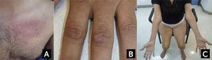 Características clínicas en dermatomiositis y Miositis por Cuerpos de Inclusión (A) Rash eritematoso en la base del cuello y región pectoral en un caso de dermatomiositis. (B) Pápulas de Gottron en dermatomiositis. (C) Atrofia de los flexores largos de los dedos a nivel del antebrazo y de cuádriceps en un caso de miositis por cuerpos de inclusión esporádica. Fotos autorizadas por padres y/o pacientes.