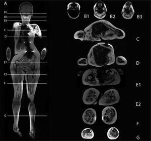 Paciente con mutación LAMA2 Protocolo de resonancia magnética de cuerpo completo. Imágenes coronales T1 e imágenes axiales con secuencia Dixon en diferentes segmentos. Marcado compromiso muscular simétrico, con reemplazo graso que compromete musculatura facial, axial, ambas cinturas y extremidades inferiores. Destaca marcado remplazo graso del temporal, de la lengua, del subescapular, redondo mayor, latissimus dorsi. En el muslo, el aumento de la fracción grasa es difuso. En la pierna destaca mayor compromiso del compartimento posterior respecto del anterior. Se observa mayor reemplazo del vasto lateral, tibiales y peroneos, con respeto relativo de las fibras superficiales del vasto lateral.
