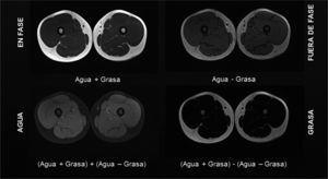 Técnica de dixon para estudio muscular Las imágenes representan la señal proveniente de las diferentes estructuras, en fase (T1), fuera de fase, con señal proveniente exclusivamente de protones de agua y exclusivamente de grasa