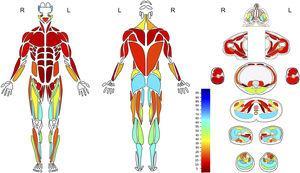 Paciente con miopatía relacionada a mutación SPEG Mapa anatómico con escala colorimétrica que representa reemplazo graso muscular con rango de 0 a 100%, en músculos superficiales y profundos. Se observa compromiso predominante músculos de cara y cuello, de la pelvis y de extremidades inferiores, especialmente el compartimento anterior del muslo y posterior de la pierna.