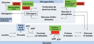 Resumen de vía metabólica del proceso de glicogenosis, glicólisis y degradación lisosomal Se presentan enzimas involucradas en el proceso. Línea puntada representa los pasos intermedios omitidos. GSD: Trastorno de almacenamiento de glicógeno (de su sigla en inglés). (Obtenido de: Lilleker JB, Keh YS, Roncaroli F, et al. Pract Neurol 2018&#59;18:14–265)
