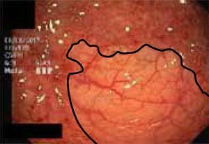 Imagen endoscópica de colon que muestra la clara zona limitante entre mucosa sana y mucosa enferma en colitis ulcerosa.