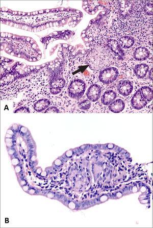 Granulomas en Enfermedad de Crohn.