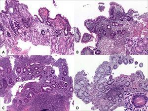 Alteraciones distintivas de colitis crónica.