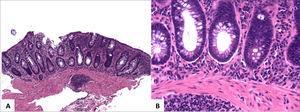 Plasmocitosis basal.