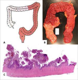 Pieza quirúrgica correspondiente a segmento de intestino grueso con CUI.
