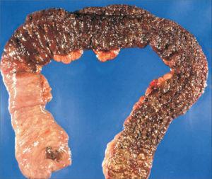 Parche cecal Colectomía total con área de inflamación eritematosa en el ciego rodeada de colon normal asociada a colitis de segmentos distales del colon (tomada de Gramlich y cols1).