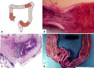 Características macroscópicas de la enfermedad de Crohn.