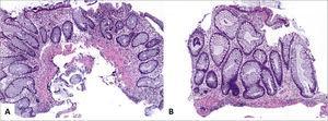 Colitis ulcerativa idiopática en remisión A (sigmoides, HE 40x) y B (recto, HE 100x) corresponde a colitis crónica inactiva caracterizada por distorsión arquitectural dada por acortamiento y ramificación de criptas, metaplasia de células de Paneth y ausencia de actividad inflamatoria. Nótese la ausencia de plasmocitosis basal en B. Tomada de Chiu y cols.24.