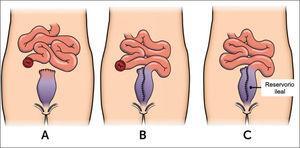 Proctocolectomía restaurativa en 3 etapas.