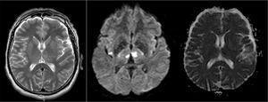 RM de cerebro. Secuencias T2, Difusión y ADC, caso 2.
