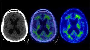 PET/CT amiloide Pacientes de 73 años con deterioro cognitivo leve, sin criterios clínicos de demencia. Presenta leve acumulación anormal de F18-Florbetaben en corteza temporal izquierda y parietal derecha.