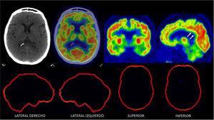 PET/CT F18-FDG normal en un paciente de 70 años con trastorno de memoria Se observa captación alta homogénea en corteza cerebral, lo que indica actividad sináptica normal. Nótese captación simétrica entre ambos hemisferios cerebrales y la alta captación del cíngulo posterior (flechas). En las imágenes inferiores se muestra software de comparación con base de datos de cerebros normales de la misma edad y sexo (Cortex ID ®) sin alteraciones.