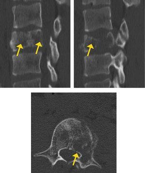 TAC: lesión lítica, con compromiso mayor del 50% del cuerpo vertebral y con colapso de éste. Destaca además afectación de cortical corporal.