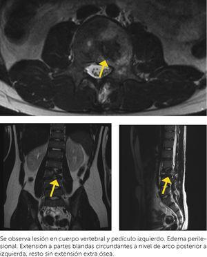 RNM T2. Se observa lesión en cuerpo vertebral y pedículo izquierdo. Edema perilesional. Extensión a partes blandas circundantes a nivel de arco posterior a izquierda, resto sin extensión extra ósea.