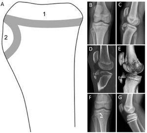 Centros de osificación y lesión fisiaria de tibia proximal. (A) Esquema de los centros de osificación de la tibia proximal (visión lateral): Centro de osificación primario (1) y secundario (2). (B y C) Radiografía anteroposterior (A) y lateral (B) de avulsión de la tuberosidad anterior de la tibia. (D y E) Imágenes de tomografía computada de rodilla, confirmando la fractura avulsiva Tipo Ogden III, con un rasgo coronal que compromete el centro de osificación secundario y primario de la tibia proximal. (F y E) Radiografía anteroposterior y lateral tras la reducción abierta y fijación interna de la fractura avulsiva con dos tornillos canulados 4.0mm paralelos a la fisis. (Ref. 5).