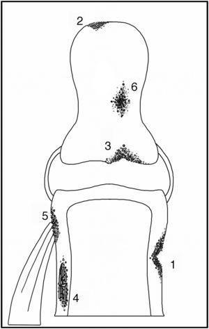 Esquema de tipos de resorción ósea. Resorción subperióstica (1), acroosteólisis (2), resorción subcondral (3), resorción intracortical (4), resorción subtendínea (5) y resorción de hueso trabecular (6).