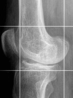 Imagen seleccionada de rodilla en telerradiografía de extremidades inferiores. Se observa un ensanchamiento metaepifisiario de los cóndilos femorales y los platillos tibiales, en un paciente con raquitismo. Estos hallazgos se advierten en pacientes con ODR que inicia en la edad pediátrica.