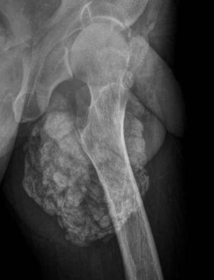 Radiografía de cadera izquierda en proyección axial. Se observan múltiples calcificaciones periarticulares, configurando un aspecto pseudotumoral de la lesión.