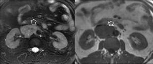 Imágenes de RM en secuencias T2 Fat-Sat y T1 respectivamente. Se identifica una masa sólida heterogénea e hiperintensa en secuencia potenciada en T2 e isointensa en T1, adyacente al hilio vascular del riñón derecho (flechas), que invade la luz de la VCI y que corresponde a un feocromocitoma extraadrenal.