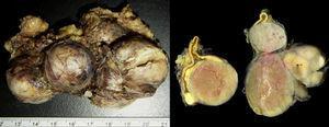 Macroscopia de la pieza que demuestra masas sólidas de color blanquecino-nacarado que se encuentran en relación con la glándula suprarrenal cuya histopatología era compatible con un carcinoma cortical con invasión de la VCI.