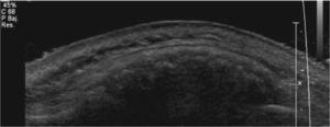 Tumor hiperecogénico exofítico con superficie irregular y ángulos agudos.