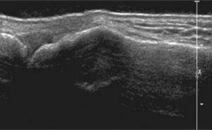 Lesión hipoecogénica subcortical geográfica sin destrucción cortical. El diagnóstico final resultó ser encondroma.