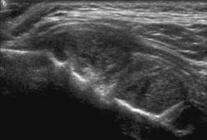 Niño varón de 1 año con inflamación de las partes blandas de la región temporal. El US demuestra una superficie ósea irregular, con periostitis y masa sólida hipoecogénica.