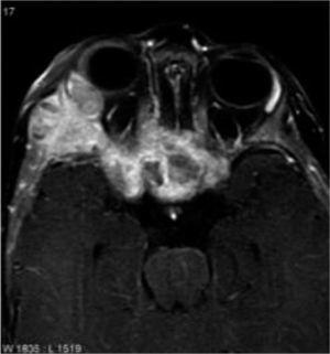RM con Gadolinio. Se confirma una lesión ósea en la fosa cigomática derecha (flecha), sólida, expansiva, con afectación del tejido subcutáneo que realza intensamente tras la administración del contraste e.v. El estudio con ventana ósea pone de manifiesto una periostitis irregular. La lesión presenta un extenso compromiso esfenoidal y del laberinto etmoidal posterior (asterisco). El resultado histológico confirmó metástasis de neuroblastoma.