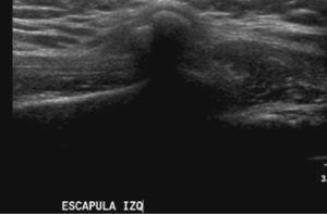Lesión ósea exofítica situada en la escápula compatible con osteocondroma.