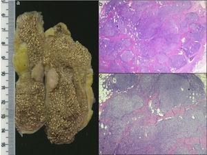 a) Pieza quirúrgica, con un nódulo sólido en la pared vesicular de 17×15×8 mm, blanquecino-amarillento. Asociado a colecistitis crónica y colesterolosis. b y c) Histología, tinción con hematoxilina y eosina: proliferación linfoide atípica polimorfa, no encapsulada, ubicada en la mucosa, submucosa y capa muscular. Compuesto por células linfoides pequeñas, con núcleos ovoideos uniformes, citoplasma eosinófilo pálido. Se realizó estudio inmunohistoquímico que resultó compatible con linfoma no Hodgkin de células B de la zona marginal.