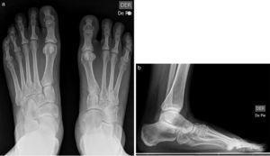 Coalición talonavicular unilateral con ausencia del quinto rayo asociada. Proyección anteroposterior del pie (a), que muestra fusión ósea entre los huesos navicular y astrágalo, junto a la ausencia del quinto metatarsiano y falanges ipsilaterales. Proyección lateral del pie (b).
