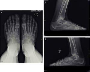 Coalición talonavicular bilateral. Proyección anteroposterior de los pies (a) y laterales (b y c), que muestra fusión ósea entre los huesos navicular y astrágalo.