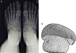 a y b) Signo de la Seta en la coalición talonavicular, en proyección anteroposterior del pie. Al seguir los contornos de la fusión ósea entre los huesos navicular y astrágalo se obtiene una imagen que remeda la forma de una seta.