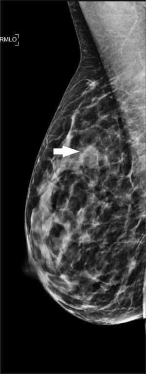 Imagen de mamografía de proyección medio lateral oblicua de la mama derecha, donde se observa en el cuadrante superior (flecha) un nódulo redondeado, de márgenes oscurecidos, isodenso.
